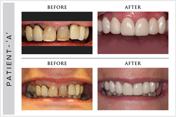 Smile Design, Sensura Dental